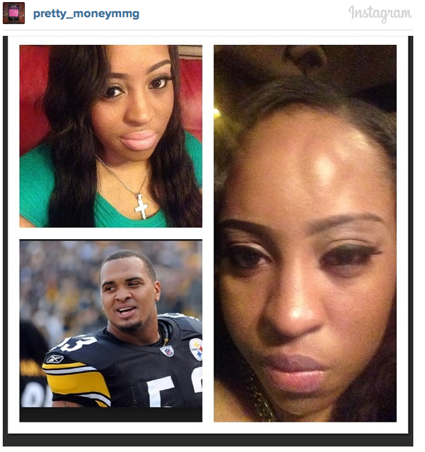 Gay Man Accuses Pouncey Twins Of Assault At Nightclub